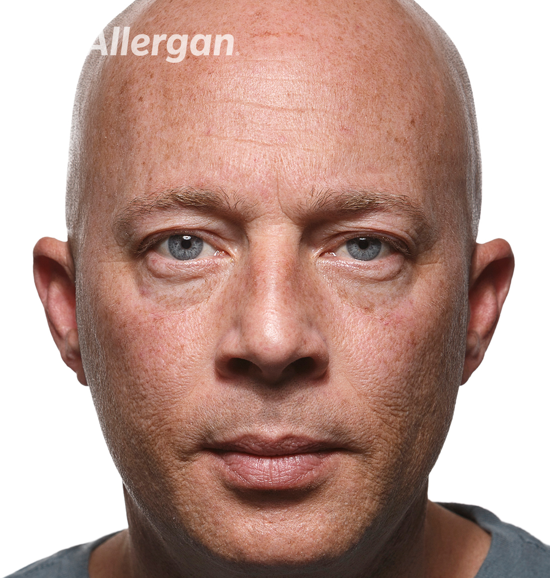 Juvederm | Caucasian male model 1 Before