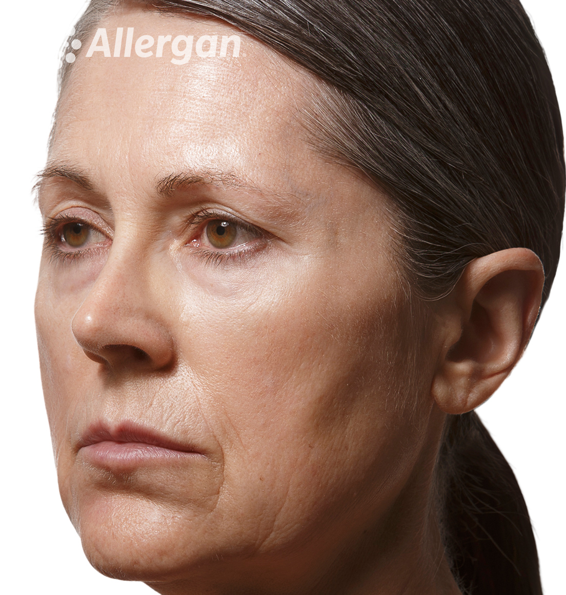 Juvederm | Caucasian female model 1 After angled