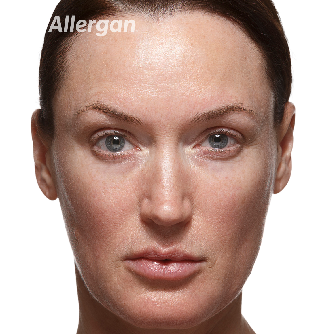 Juvederm | Caucasian female model After